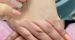 Today a before / after picture :) we have the complete shellac with leftovers