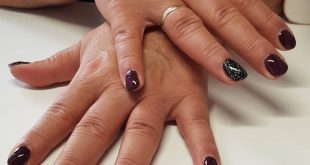 A natural nail reinforcement with red black lacquer with black silver glitter