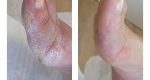 DIFFERENCE OF MEDICAL FOOT CARE
