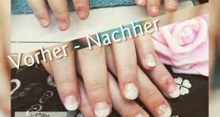 Artificial fingernails also help against nail biting, Make an appointment and en