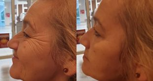 Our AGELESS application result ... No more confusion in 2 minutes. Msg throw for information